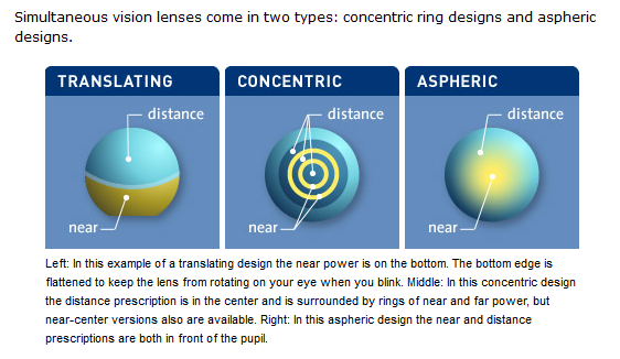 Bifocal Contact Lenses Designs